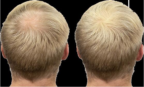 Zenna Hair Building Fibers voor en na kleur blond