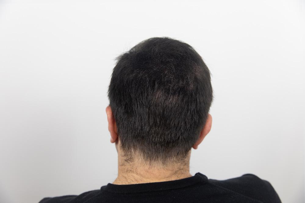 Zenna Hair Building Fibers na het gebruik van de vezels