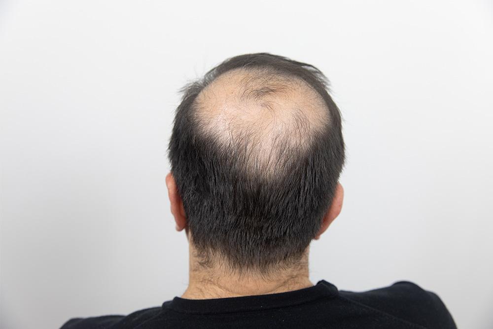 Zenna Hair Building Fibers voor het gebruik van de vezels